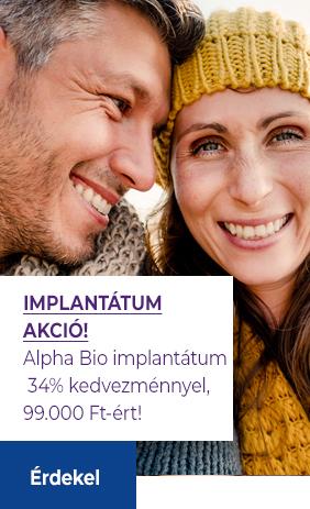 Alpha bio implantátum akció